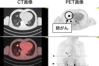 CT画像, PET画像