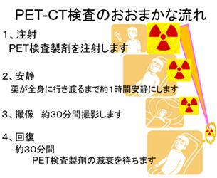 PET-CT検査のおおまかな流れ