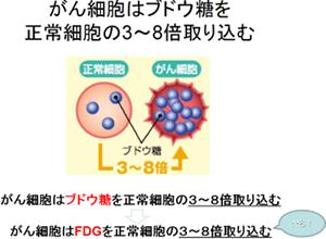 がん細胞はブドウ糖を正常細胞の3〜8倍取り組む