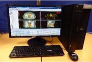 写真 放射線治療計画装置