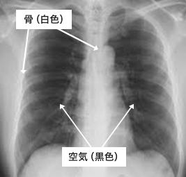 図3 X線写真