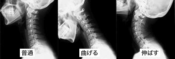 首のレントゲン